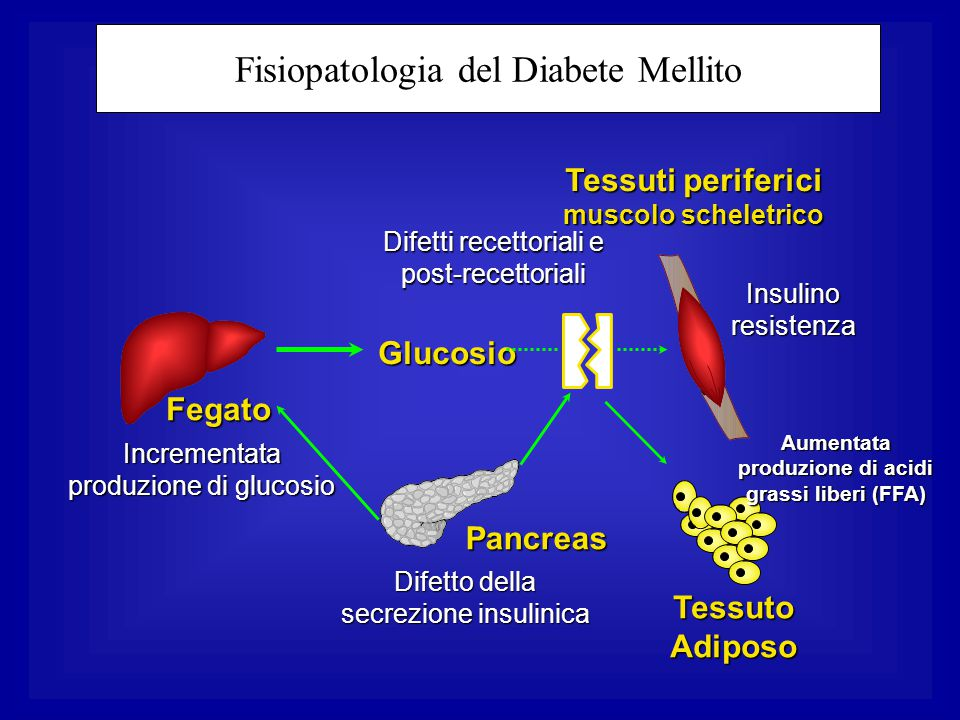 Tessuti periferici muscolo scheletrico Glucosio Fegato Difetto della secrezione insulinica Incrementata produzione di glucosio Difetti recettoriali e