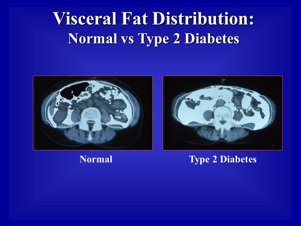 Visceral Fat Distribution: Normal vs Type 2 Diabetes NormalType 2 Diabetes