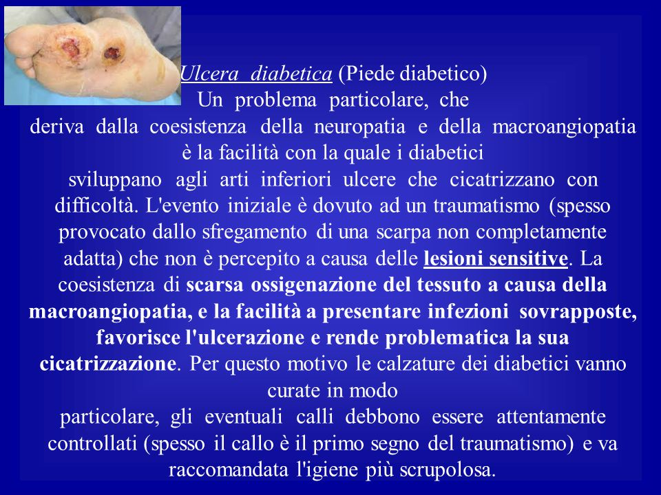 Ulcera diabetica (Piede diabetico) Un problema particolare, che deriva dalla coesistenza della neuropatia e della macroangiopatia è la facilità con la