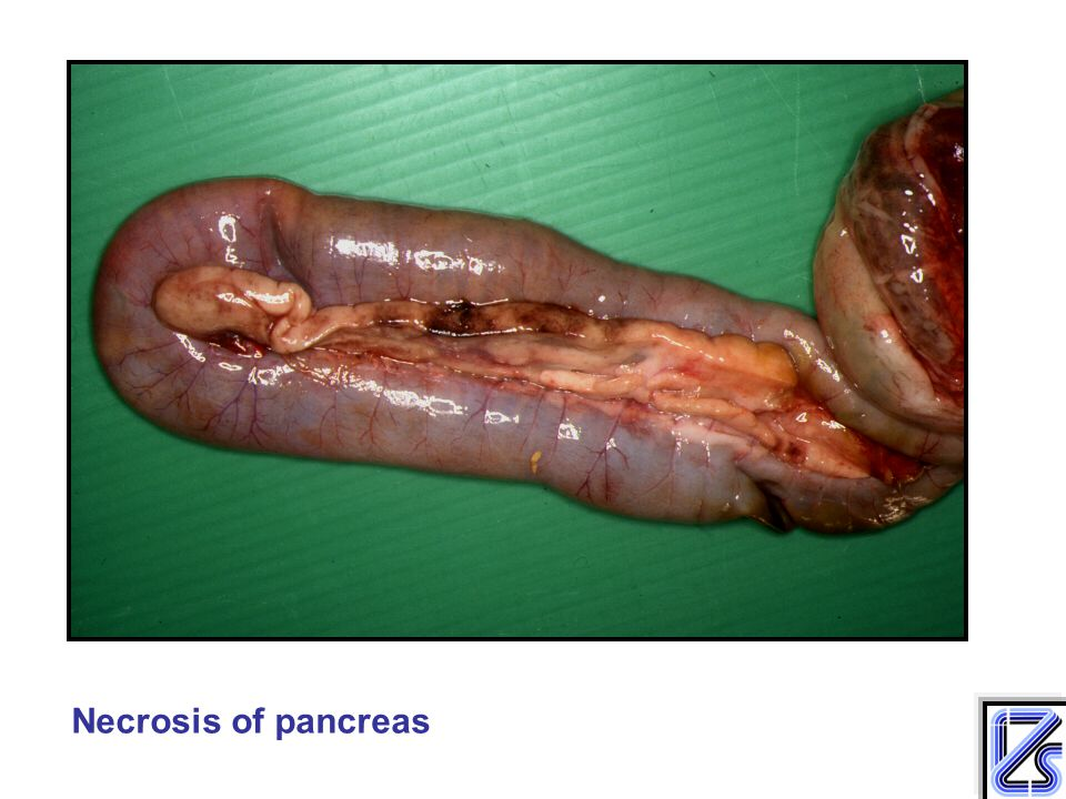Necrosis of pancreas
