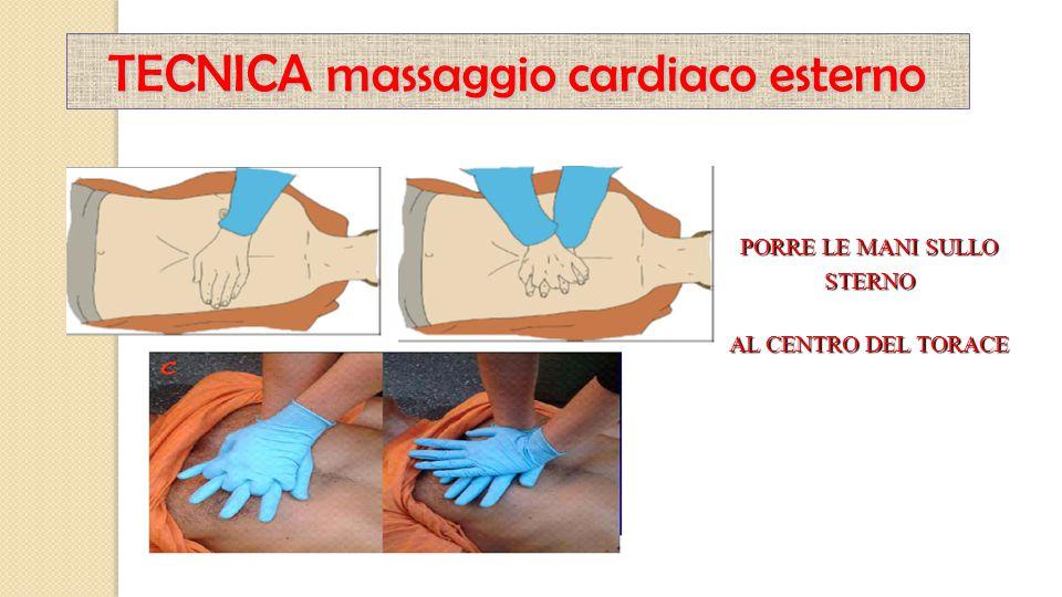 PORRE LE MANI SULLO STERNO AL CENTRO DEL TORACE TECNICA massaggio cardiaco esterno