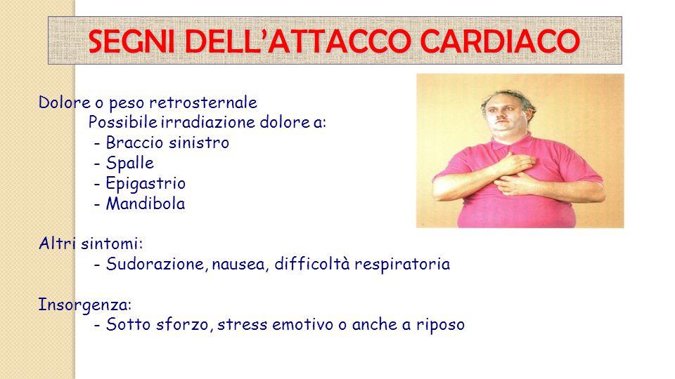 Dolore o peso retrosternale Possibile irradiazione dolore a: - Braccio sinistro - Spalle - Epigastrio - Mandibola Altri sintomi: - Sudorazione, nausea