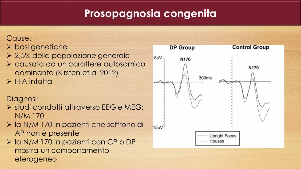 Prosopagnosia congenita La componente N250 e il meccanismo di riconoscimento implicito attraverso ERPs e la SCR.