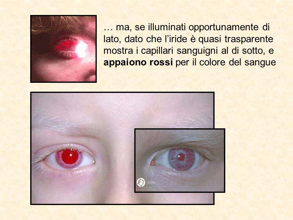 … ma, se illuminati opportunamente di lato, dato che l'iride è quasi trasparente mostra i capillari sanguigni al di sotto, e appaiono rossi per il col