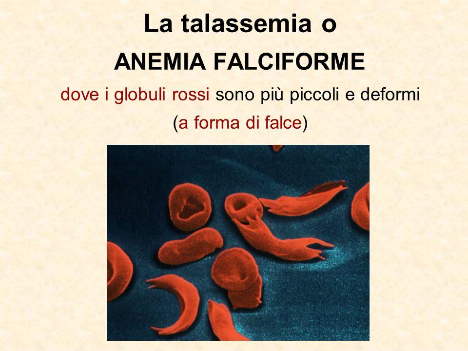La talassemia o ANEMIA FALCIFORME dove i globuli rossi sono più piccoli e deformi (a forma di falce)