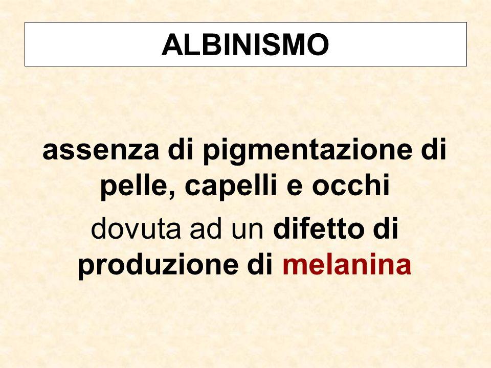 ALBINISMO assenza di pigmentazione di pelle, capelli e occhi dovuta ad un difetto di produzione di melanina