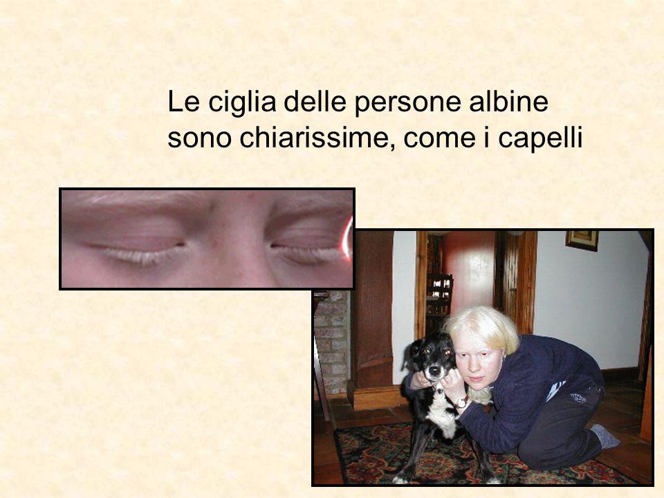 Gli occhi delle persone albine NON sono rossi…