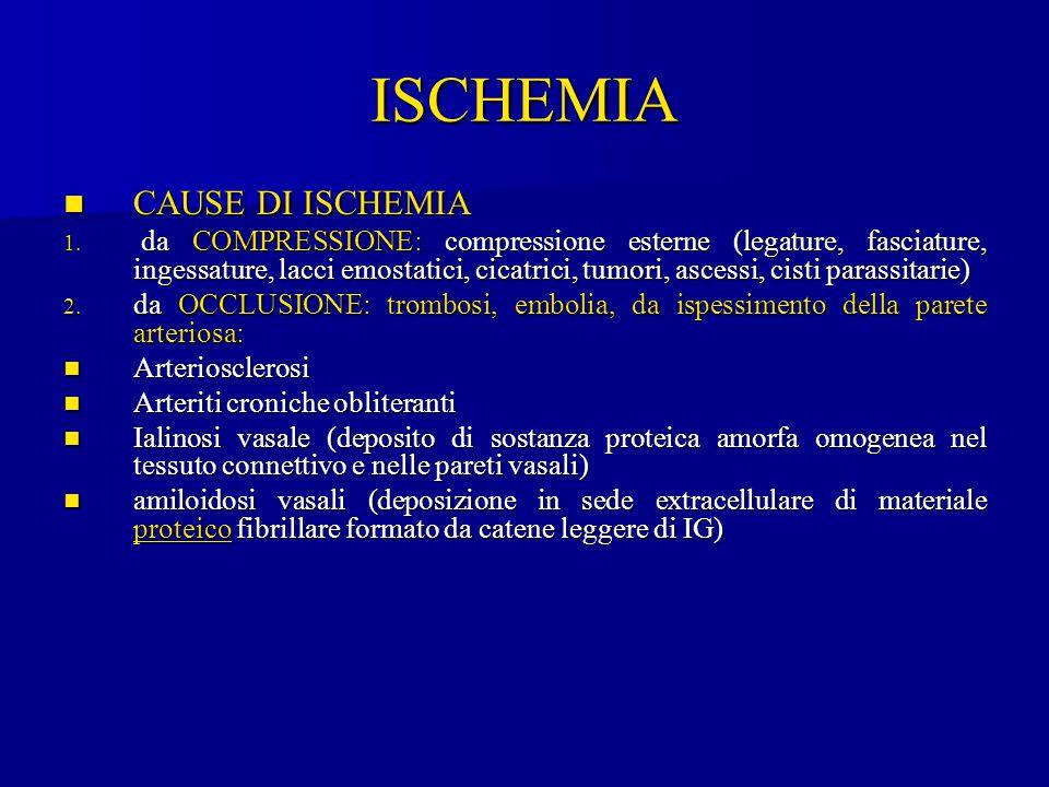 ISCHEMIA CAUSE DI ISCHEMIA CAUSE DI ISCHEMIA 1. da COMPRESSIONE: compressione esterne (legature, fasciature, ingessature, lacci emostatici, cicatrici,