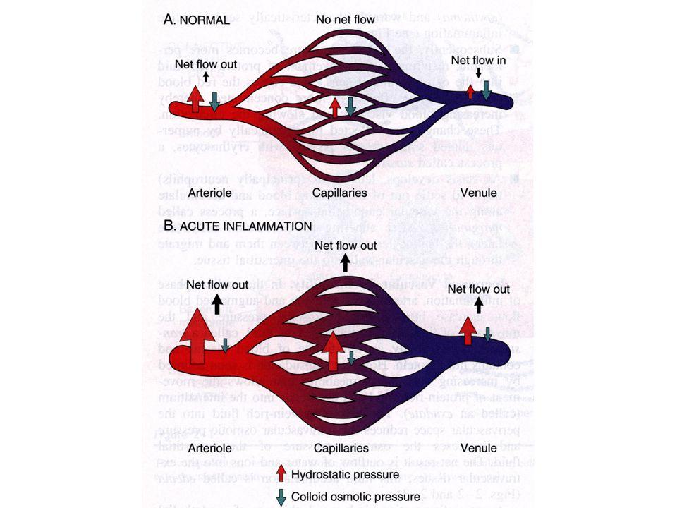 Cause Aumento di pressione idrostatica nel comparto venoso –Scompenso cardiaco Diminuita pressione osmotica –Perdita di albumina (sindrome nefrosica) –Malnutrizione –Epatopatie Ritenzione di sodio –Emodiluizione Aumento di pressione idrostatica Diminuzione di pressione osmotica Ostruzione linfatica –Mancato drenaggio linfatico del liquido intestiziale Infiammazione Neoplasia