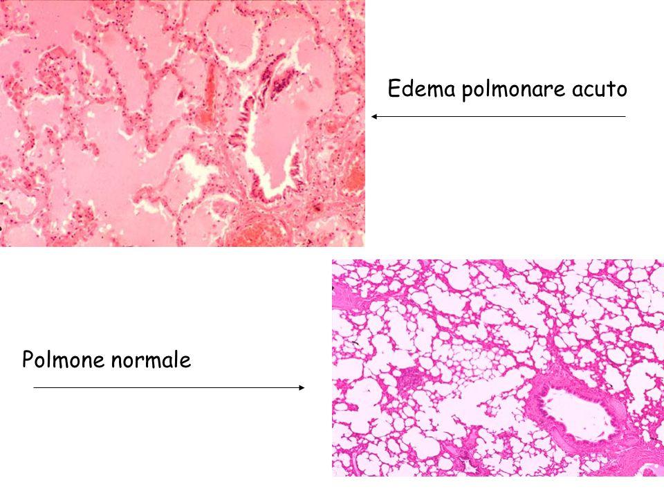 Istopatologia dell'infarto Necrosi coagulativa Reazione infiammatoria periferica Processi riparativi –Rimozione dei detriti necritici –Rigenerazione del parenchima –Formazione di una cicatrice –Nel sistema nervoso centrale Rimozione dei detriti necrotici Cavità