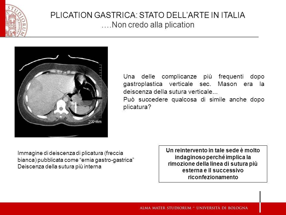 PLICATION GASTRICA: STATO DELL'ARTE IN ITALIA ….Non credo alla plication Una delle complicanze più frequenti dopo gastroplastica verticale sec. Mason
