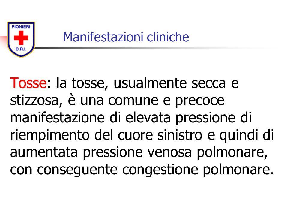 Manifestazioni cliniche Tosse Tosse: la tosse, usualmente secca e stizzosa, è una comune e precoce manifestazione di elevata pressione di riempimento