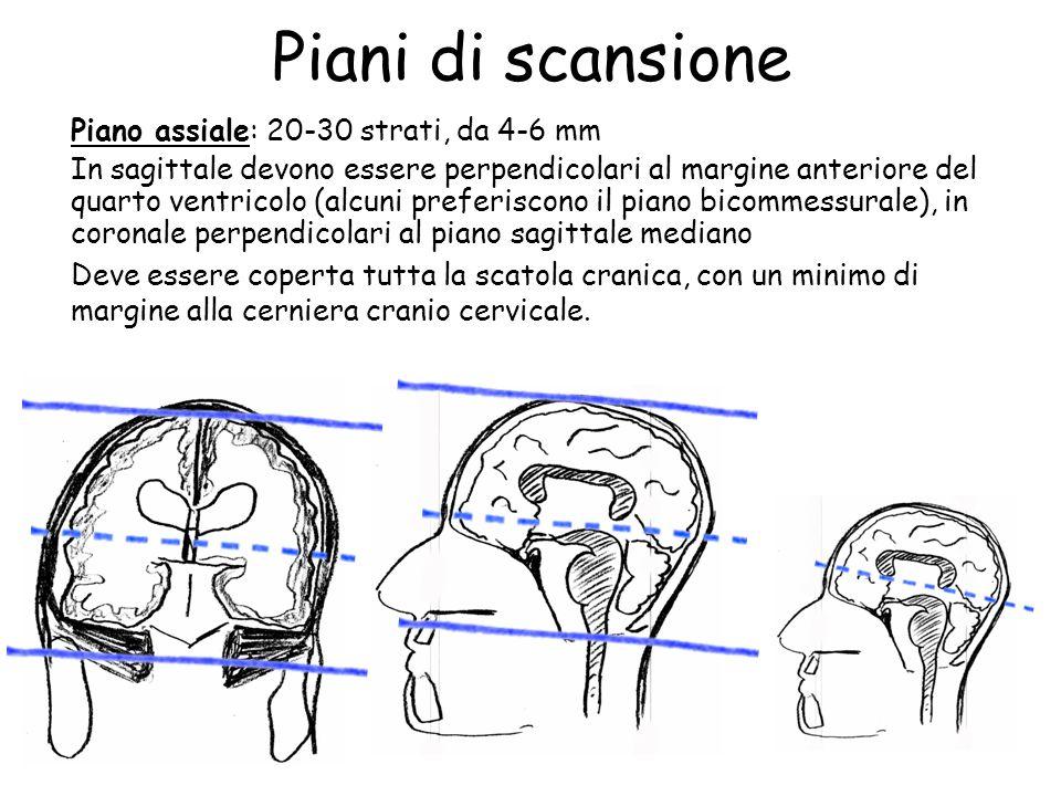 Piani di scansione Piano assiale: 20-30 strati, da 4-6 mm In sagittale devono essere perpendicolari al margine anteriore del quarto ventricolo (alcuni