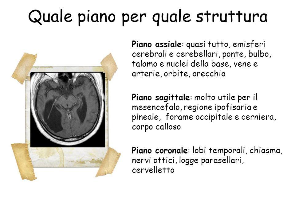 Quale piano per quale struttura Piano assiale: quasi tutto, emisferi cerebrali e cerebellari, ponte, bulbo, talamo e nuclei della base, vene e arterie