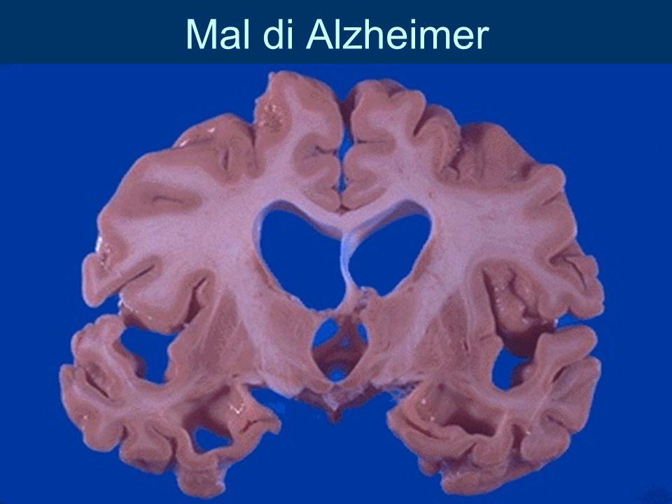 Mal di Alzheimer
