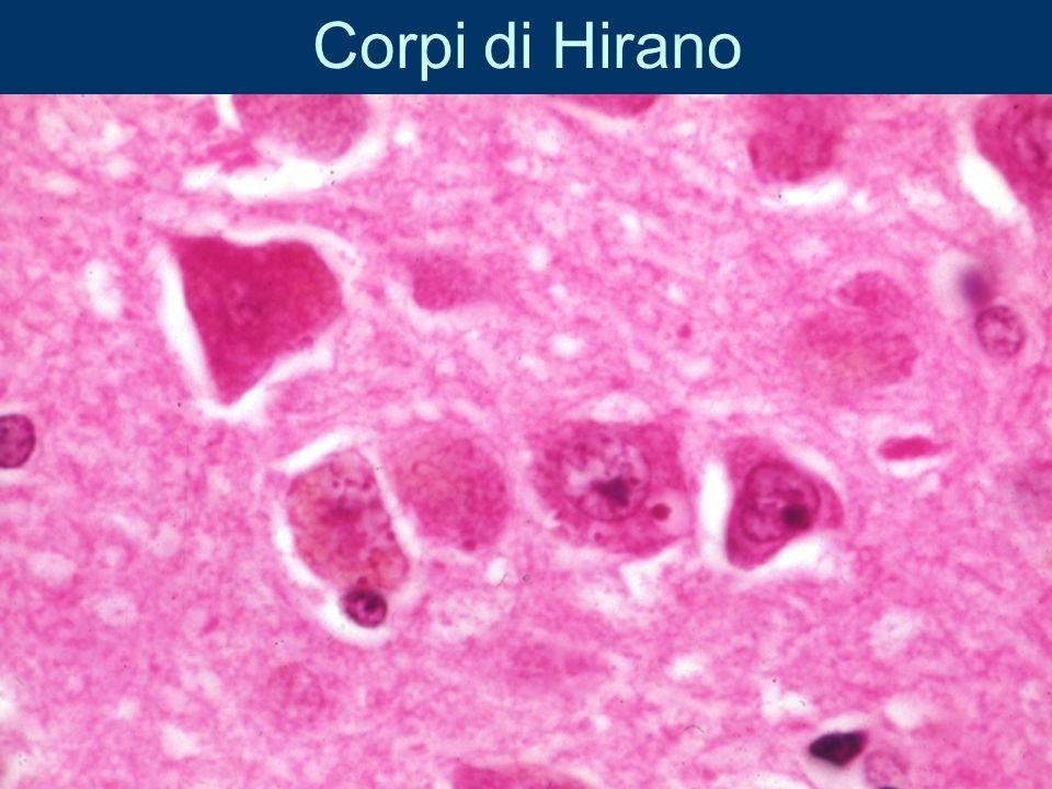 Corpi di Hirano