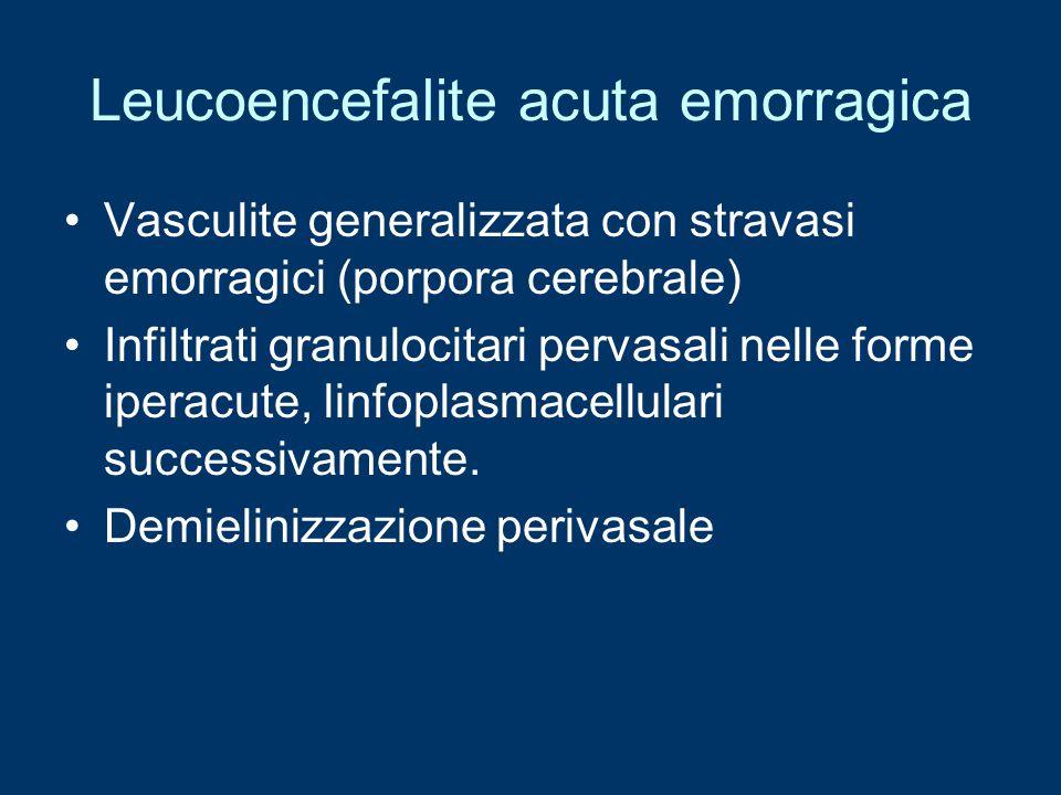 Leucoencefalite acuta emorragica Vasculite generalizzata con stravasi emorragici (porpora cerebrale) Infiltrati granulocitari pervasali nelle forme ip