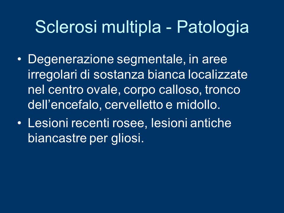Sclerosi multipla - Patologia Degenerazione segmentale, in aree irregolari di sostanza bianca localizzate nel centro ovale, corpo calloso, tronco dell