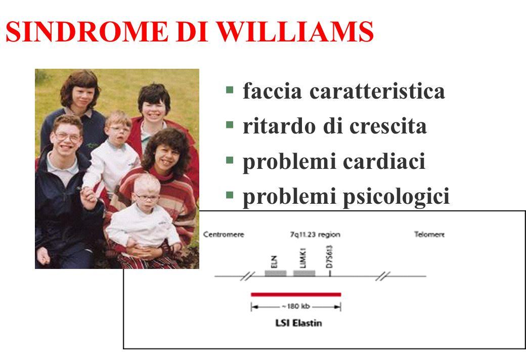 SINDROME DI WILLIAMS §faccia caratteristica §ritardo di crescita §problemi cardiaci §problemi psicologici