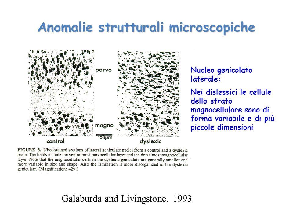 Anomalie strutturali microscopiche Galaburda and Livingstone, 1993 Nucleo genicolato laterale: Nei dislessici le cellule dello strato magnocellulare s
