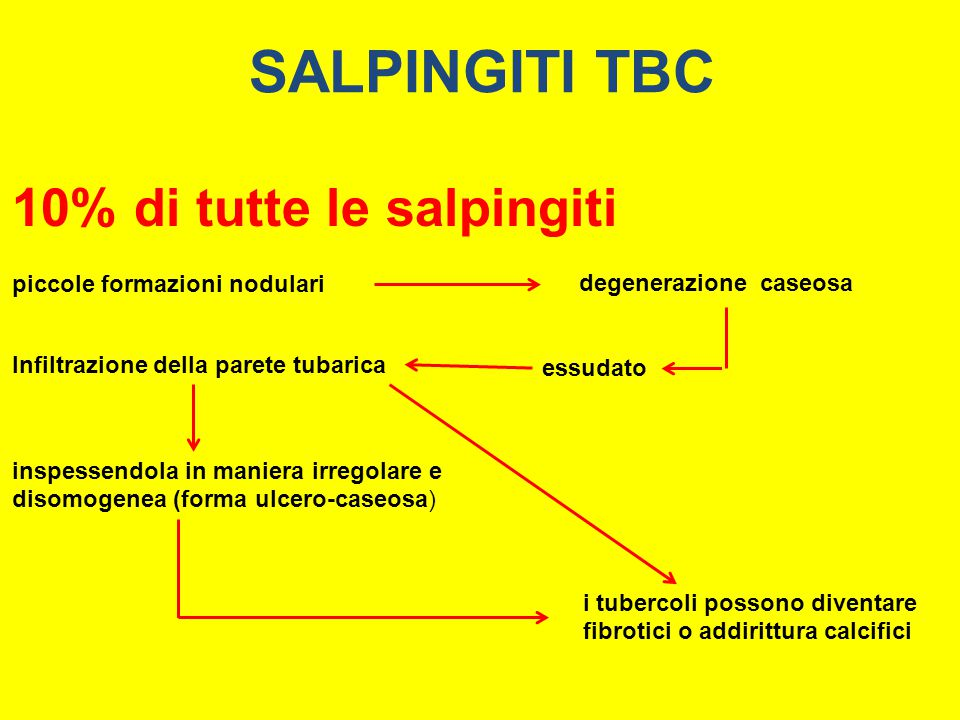 SALPINGITI TBC 10% di tutte le salpingiti piccole formazioni nodulari degenerazione caseosa essudato Infiltrazione della parete tubarica inspessendola
