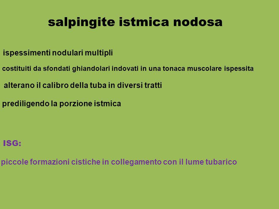 ISG: piccole formazioni cistiche in collegamento con il lume tubarico salpingite istmica nodosa ispessimenti nodulari multipli alterano il calibro del