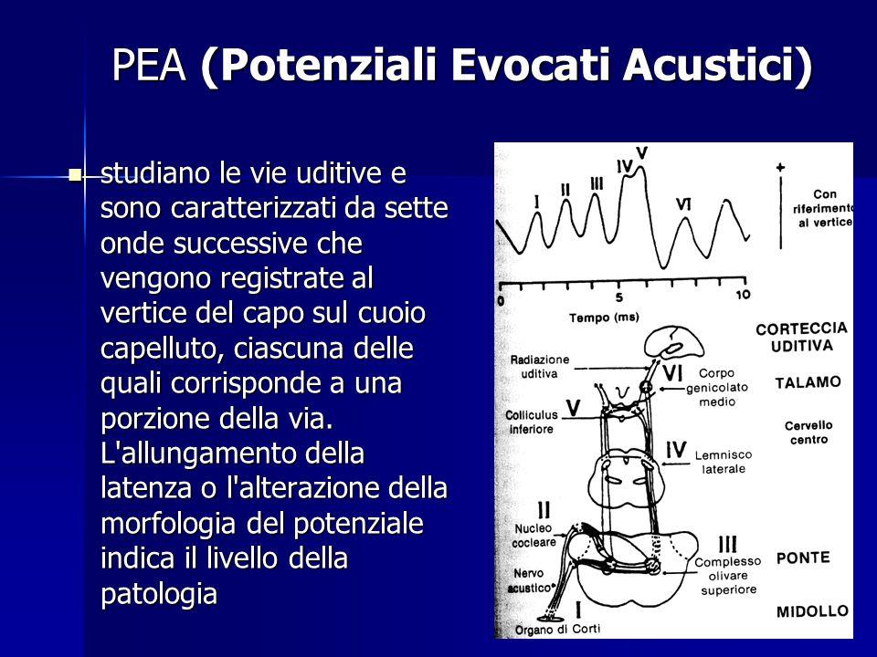 PEA (Potenziali Evocati Acustici) studiano le vie uditive e sono caratterizzati da sette onde successive che vengono registrate al vertice del capo sul cuoio capelluto, ciascuna delle quali corrisponde a una porzione della via.