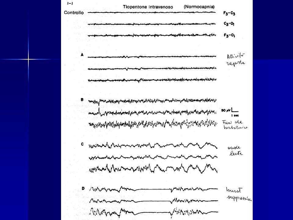 PESS (Potenziali Evocati Somato Sensoriali) Permettono di valutare l integrità della via sensitiva dai recettori periferici, ai cordoni posteriori fino al talamo e alla corteccia sensitiva.