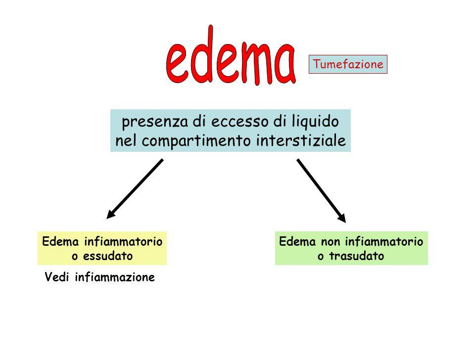 presenza di eccesso di liquido nel compartimento interstiziale Edema infiammatorio o essudato Edema non infiammatorio o trasudato Vedi infiammazione T