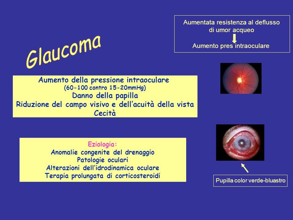 Aumento della pressione intraoculare (60-100 contro 15-20mmHg) Danno della papilla Riduzione del campo visivo e dell'acuità della vista Cecità Aumenta