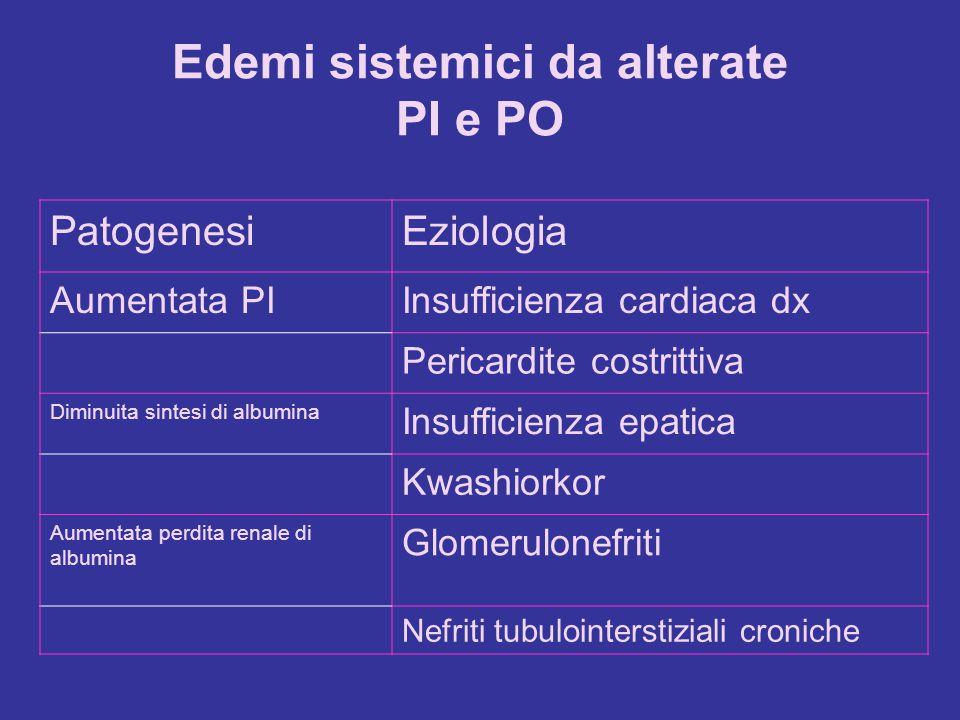 Edemi sistemici da alterate PI e PO PatogenesiEziologia Aumentata PIInsufficienza cardiaca dx Pericardite costrittiva Diminuita sintesi di albumina In