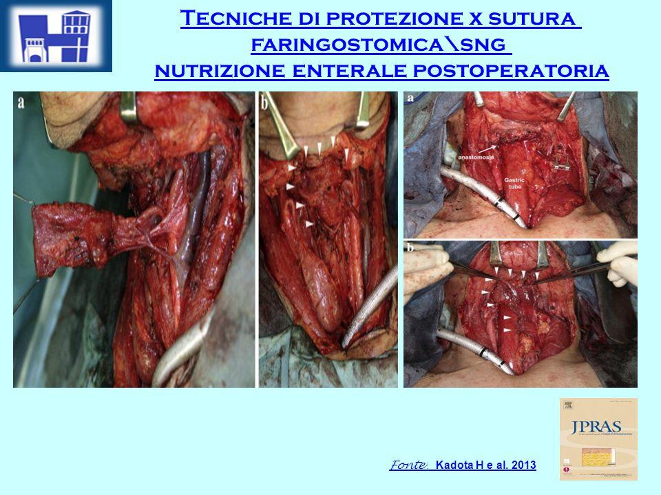 Fonte : Kadota H e al. 2013 Tecniche di protezione x sutura faringostomica\sng nutrizione enterale postoperatoria