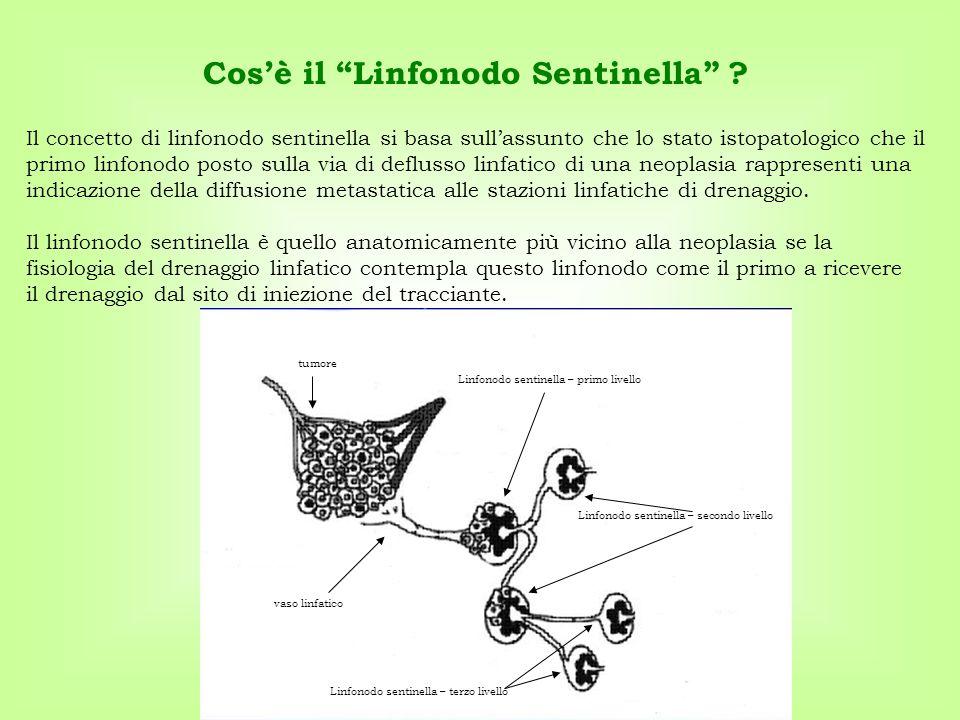 Il concetto di linfonodo sentinella si basa sull'assunto che lo stato istopatologico che il primo linfonodo posto sulla via di deflusso linfatico di u