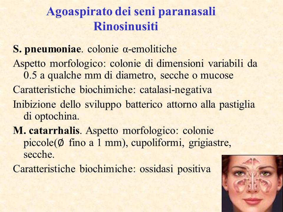 Agoaspirato dei seni paranasali Rinosinusiti S. pneumoniae. colonie α-emolitiche Aspetto morfologico: colonie di dimensioni variabili da 0.5 a qualche