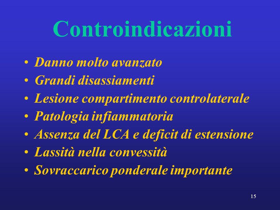 15 Controindicazioni Danno molto avanzato Grandi disassiamenti Lesione compartimento controlaterale Patologia infiammatoria Assenza del LCA e deficit