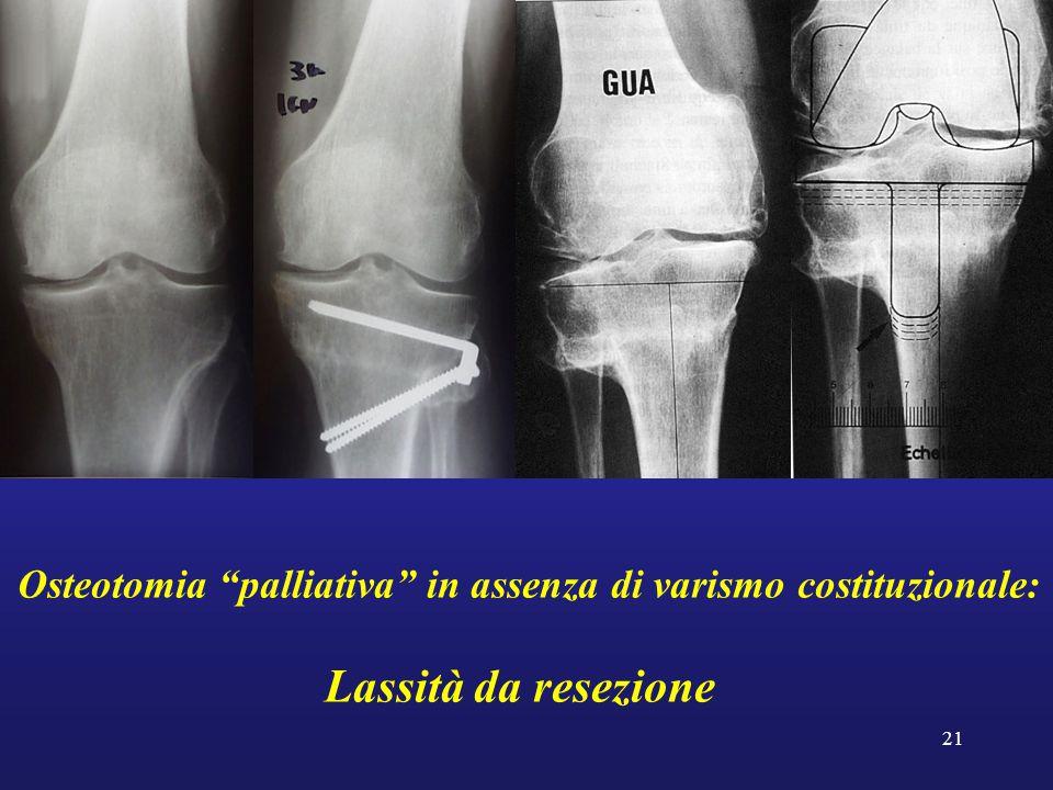 """21 Osteotomia """"palliativa"""" in assenza di varismo costituzionale: Lassità da resezione"""