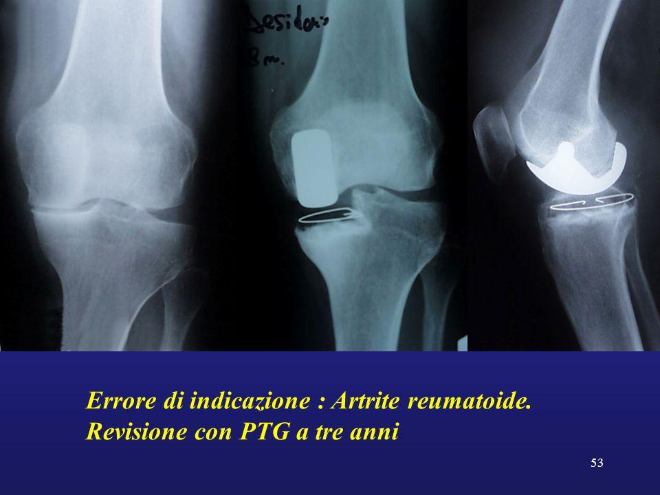 53 Errore di indicazione : Artrite reumatoide. Revisione con PTG a tre anni