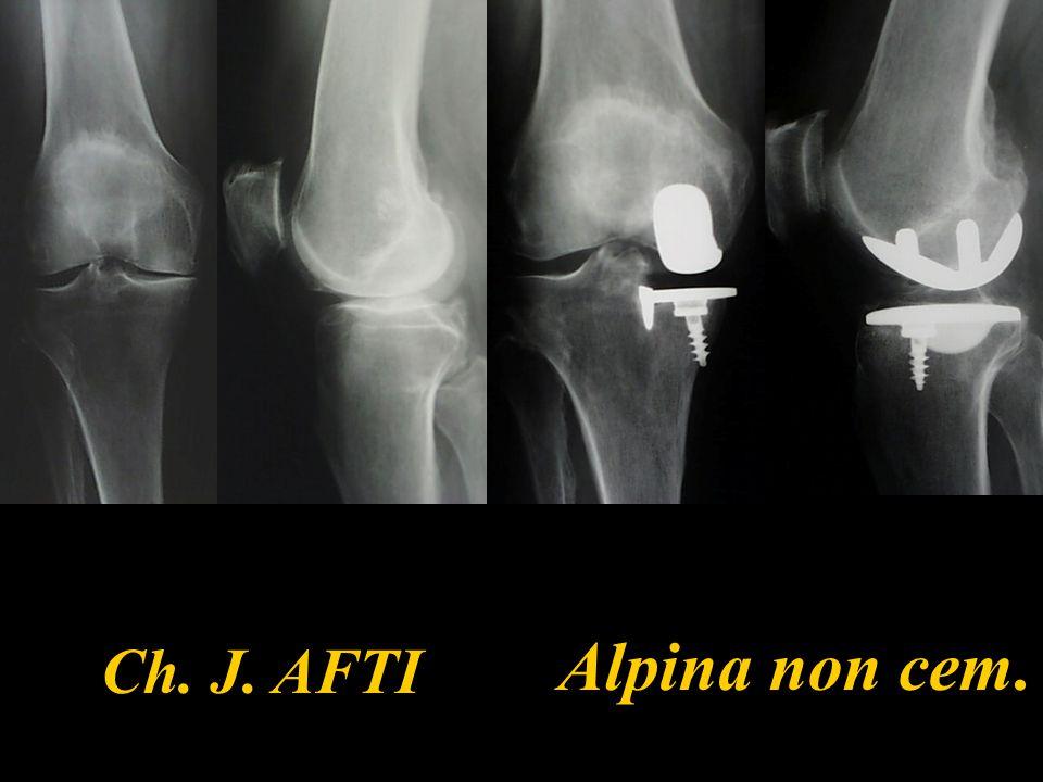 57 Compartimento sano 19% evolvono verso un remodellamento osteofitico senza pincement dell'interlinea 9% sviluppano una artrosi femoro- tibiale con pincement dell'interlinea (14% est.-7% int.) Dejour - sofcot 1996