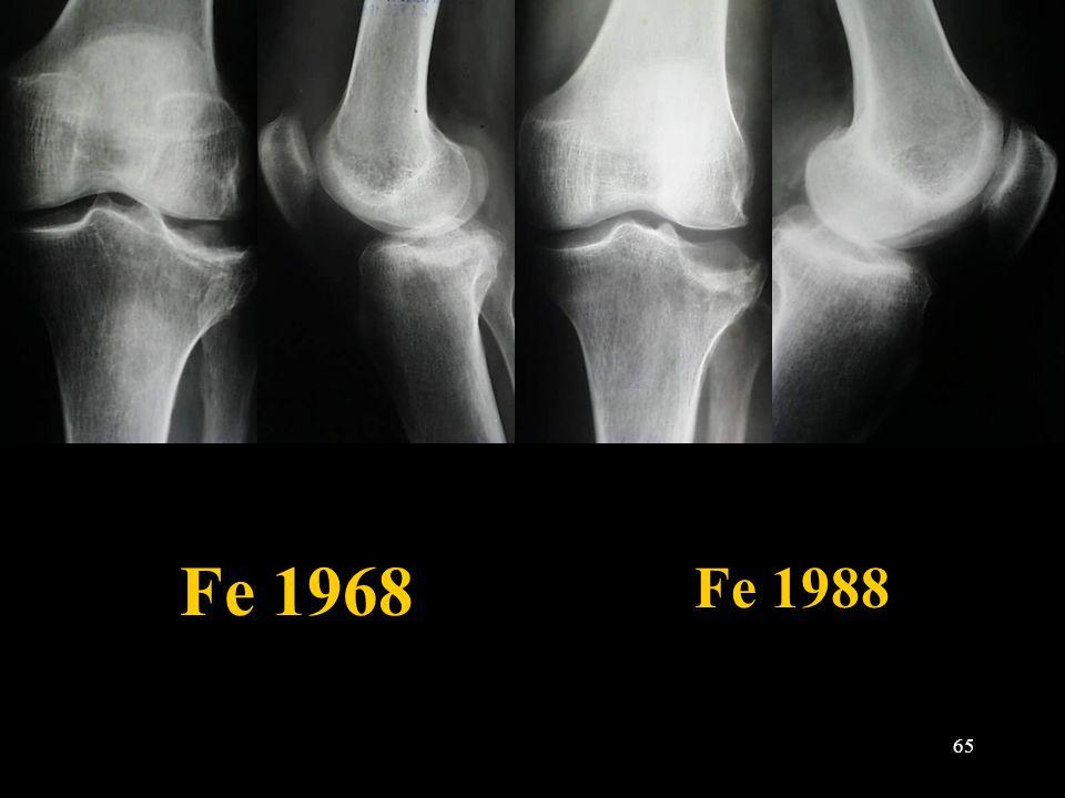 65 Fe 1968 Fe 1988