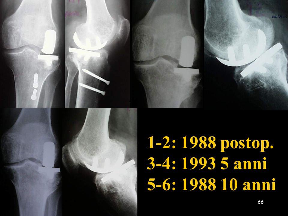 66 1-2: 1988 postop. 3-4: 1993 5 anni 5-6: 1988 10 anni