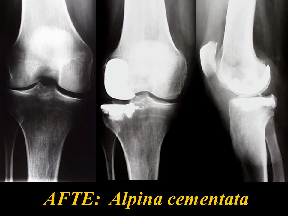 58 Dolore residuo Dolore para-articolare interno (precoce o tardivo) Idrartro doloroso Dolore dell'interlinea