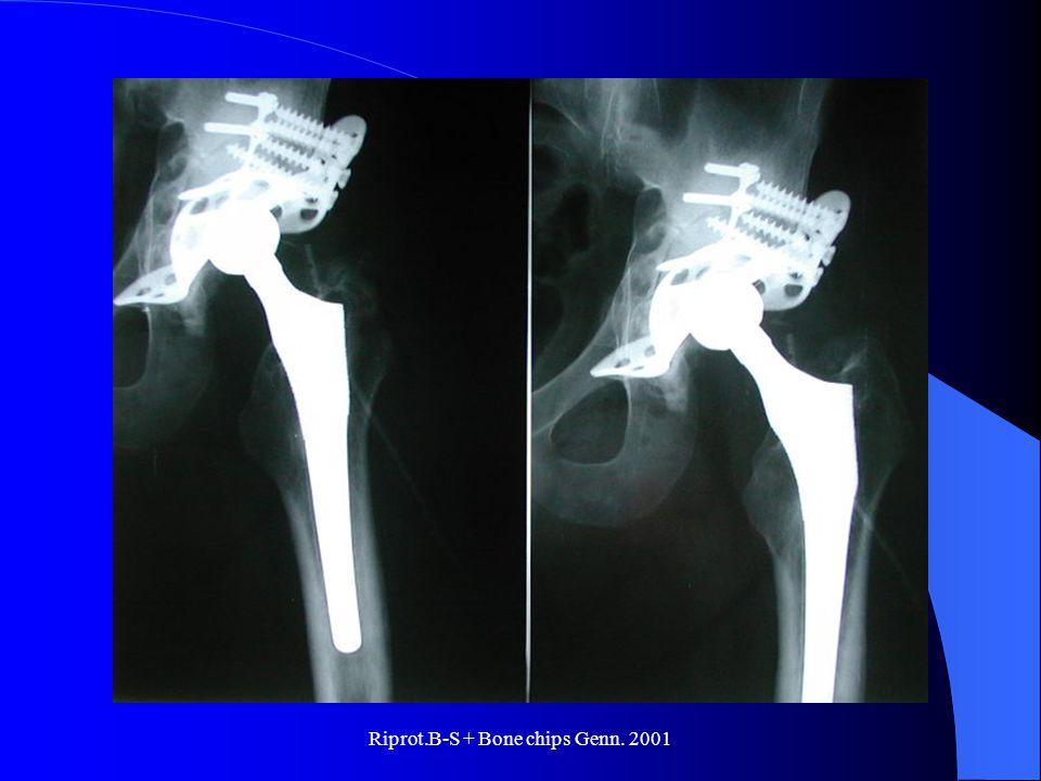 Riprot.B-S + Bone chips Genn. 2001