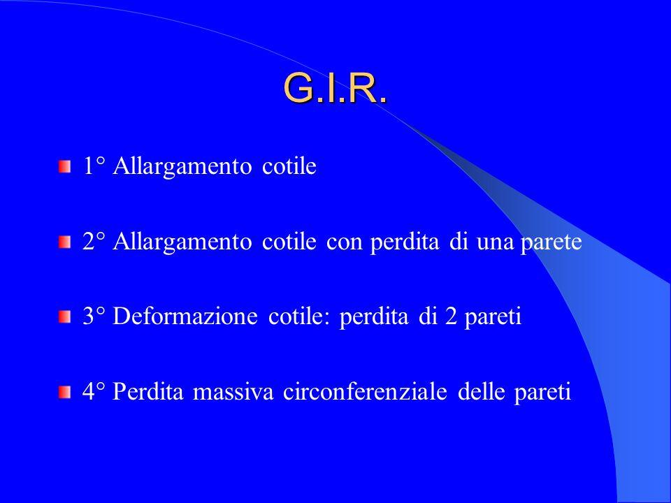 G.I.R. 1° Allargamento cotile 2° Allargamento cotile con perdita di una parete 3° Deformazione cotile: perdita di 2 pareti 4° Perdita massiva circonfe