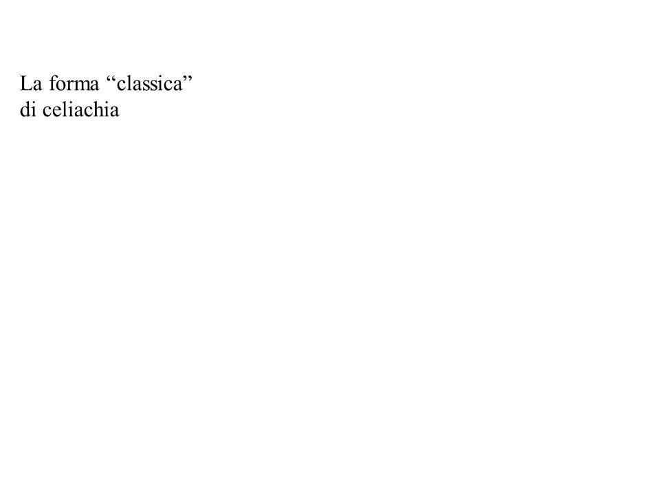 """La forma """"classica"""" di celiachia"""