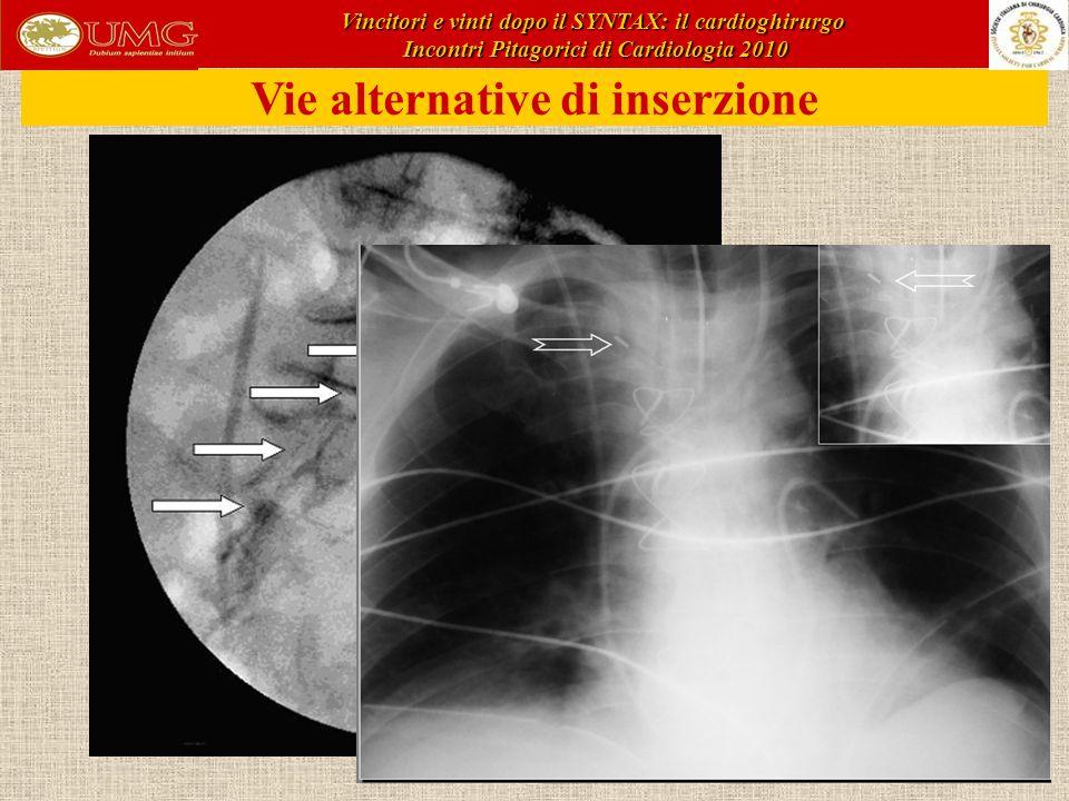 Vie alternative di inserzione Vincitori e vinti dopo il SYNTAX: il cardioghirurgo Incontri Pitagorici di Cardiologia 2010 Incontri Pitagorici di Cardiologia 2010