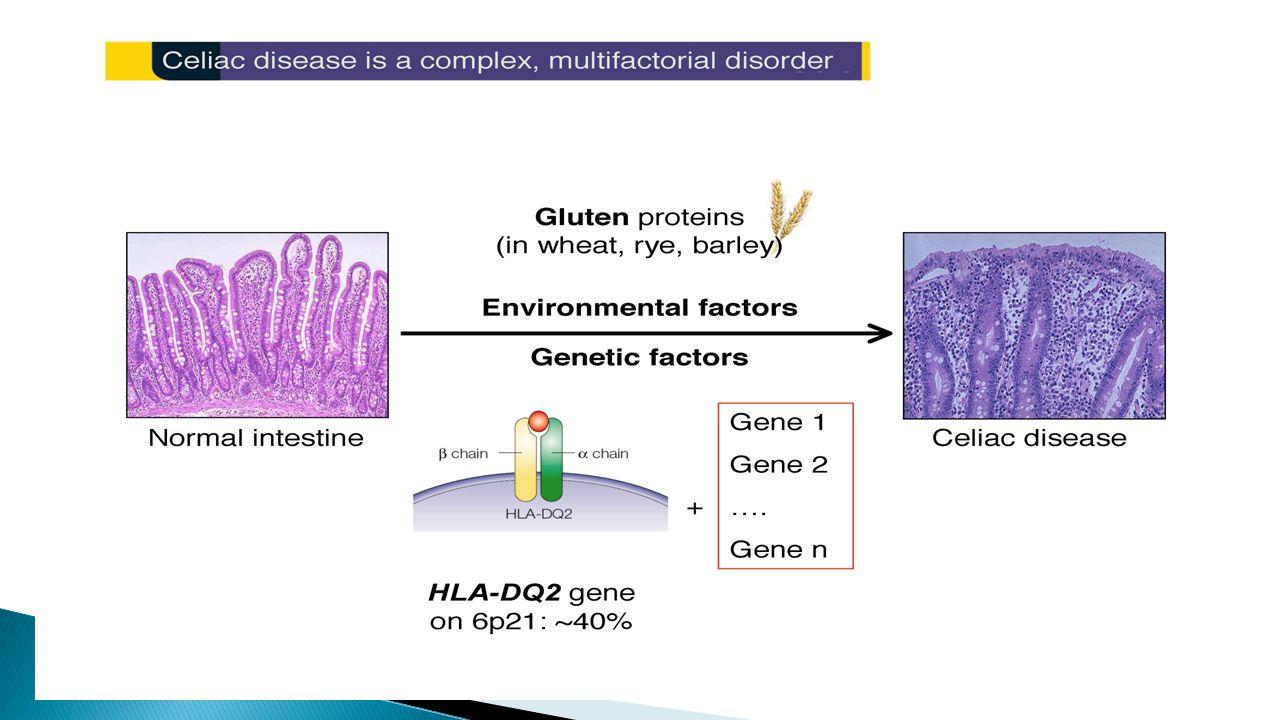 Fattori di rischio e malattia celiaca Fattori genetici  Geni HLA  Geni non-HLA Fattori non genetici/ambientali  Alimentazione nel primo anno di vita  Infezioni  Altri