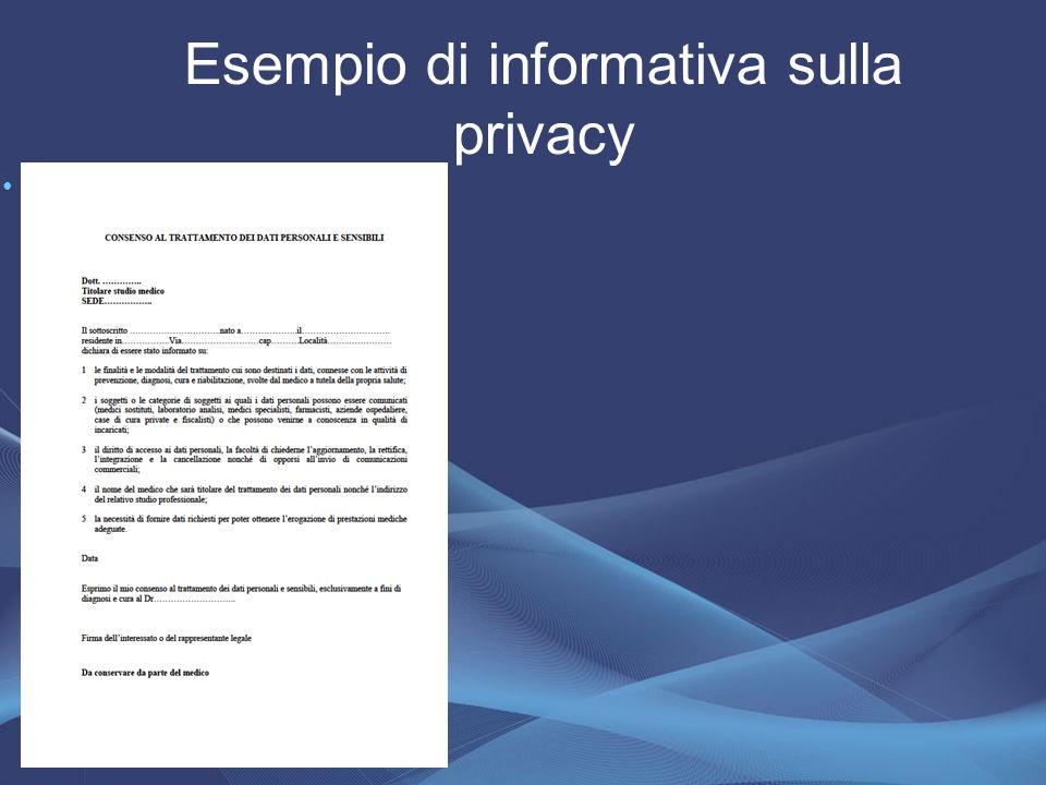 Esempio di informativa sulla privacy.