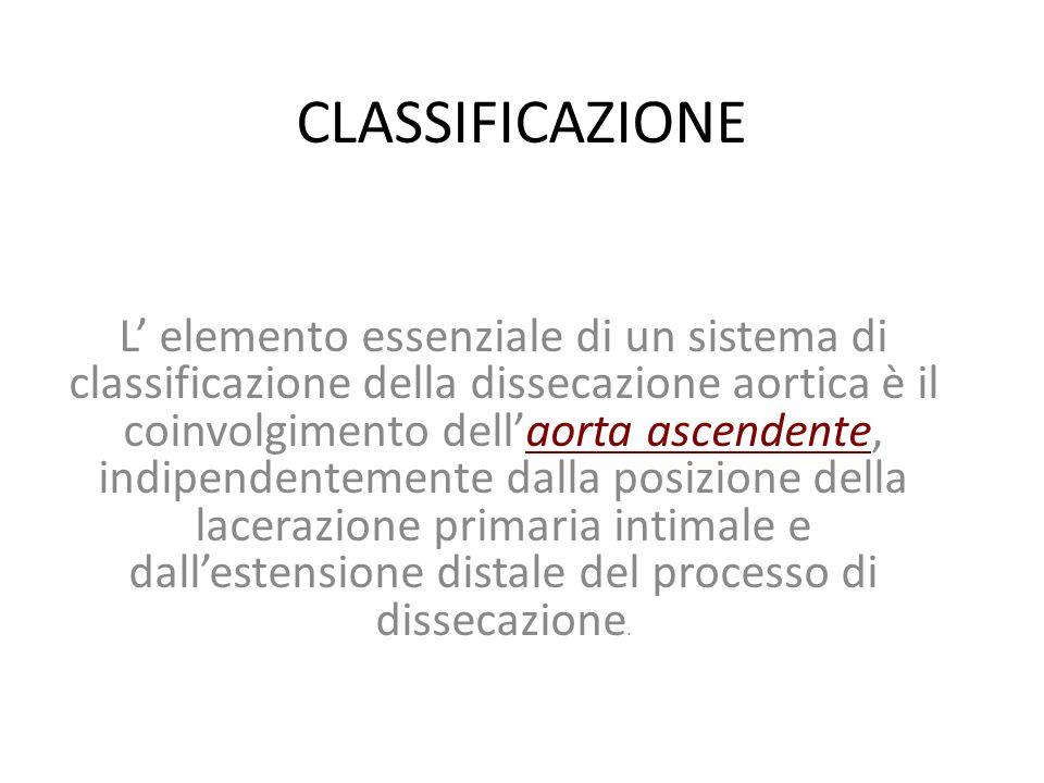 CLASSIFICAZIONE L' elemento essenziale di un sistema di classificazione della dissecazione aortica è il coinvolgimento dell'aorta ascendente, indipend