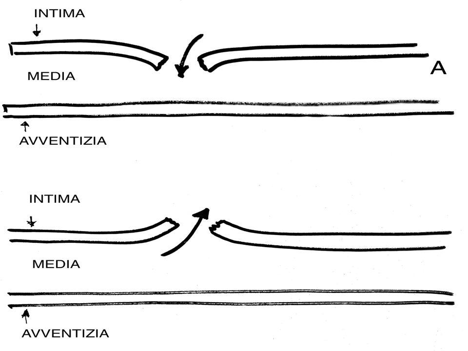 DEGENERAZIONE DELLA TONACA MEDIA Degenerazione del collagene Degenerazione del tessuto elastico Formazione di cisti = MEDIONECROSI CISTICA