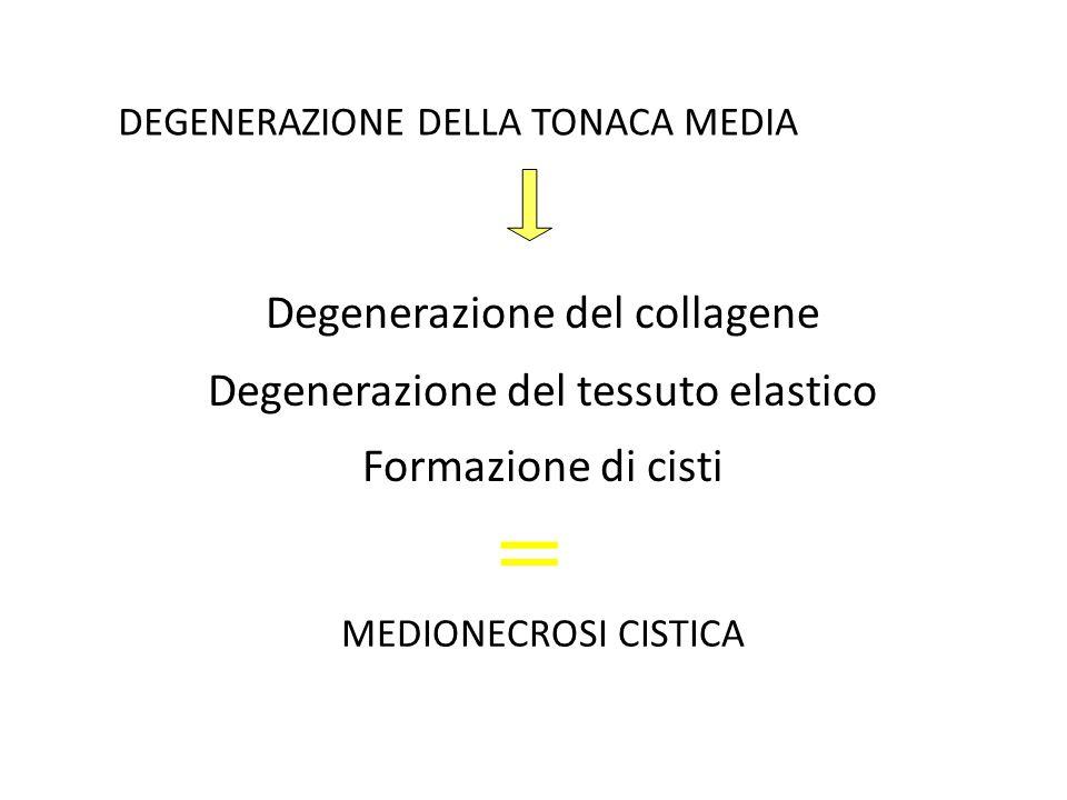 La MEDIONECROSI CISTICA è nella maggior parte dei casi il risultato di una azione traumatizzante cronica contro la parete aortica Ipertensione arteriosa di lunga data
